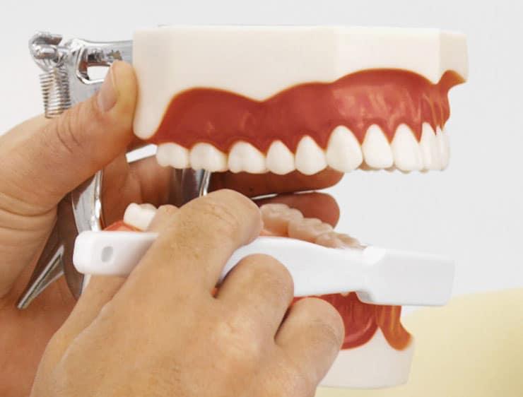 Fragen über Zahnersatz und Zahnarzt
